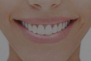 tanden bleken Nijmegen